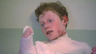 Body Bizarre 3: Il fait preuve d'un courage exemplaire!