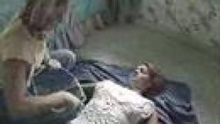 Rescue 911 - Episode 701 - Stuck torso cast