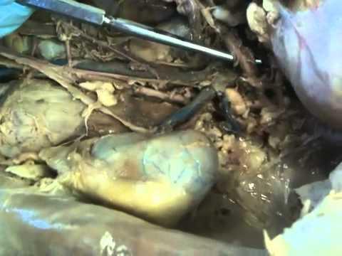 Mesenteric arteries: c...