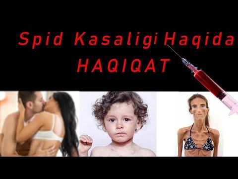 Spid Kasaligi Haqida \