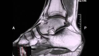 MRI on my ankle