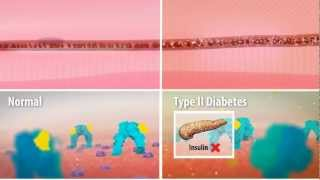 Insulin Resistance in Type 2 Diabetes