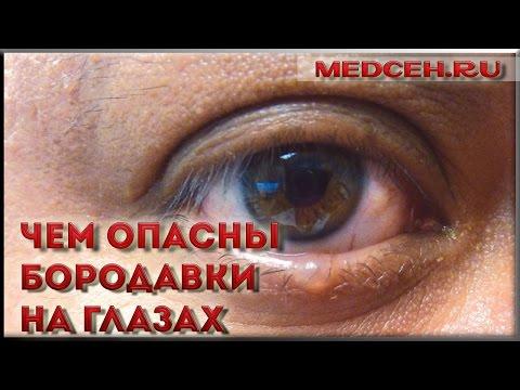 Чем опасны бородавки на глазах - YouTube