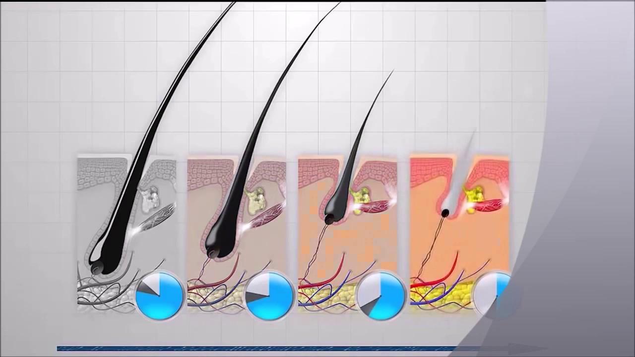 Domaci preparati protiv opadanja kose