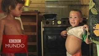La crisis del hambre en Venezuela - DOCUMENTAL BBC MUNDO