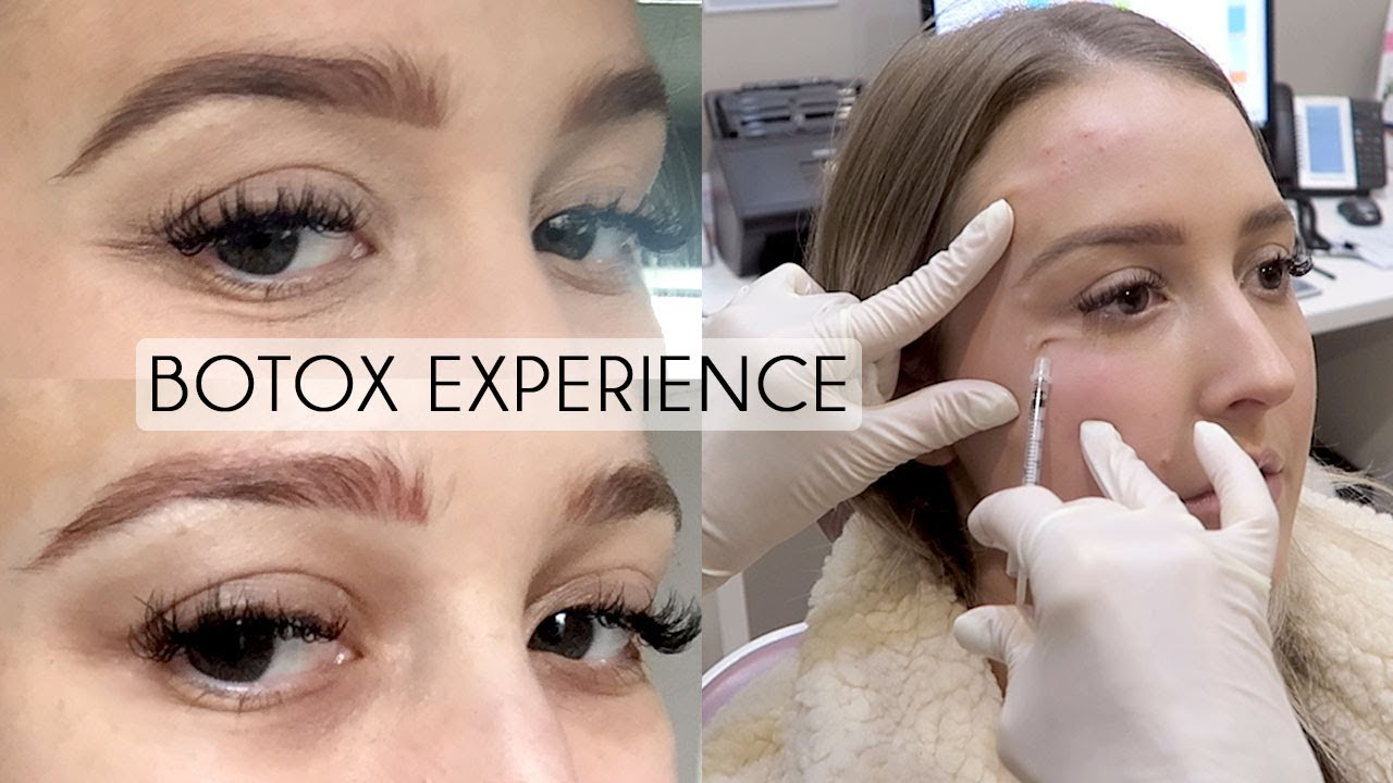 UNDER EYE BOTOX Experience & Footage   Before/After Cost ...