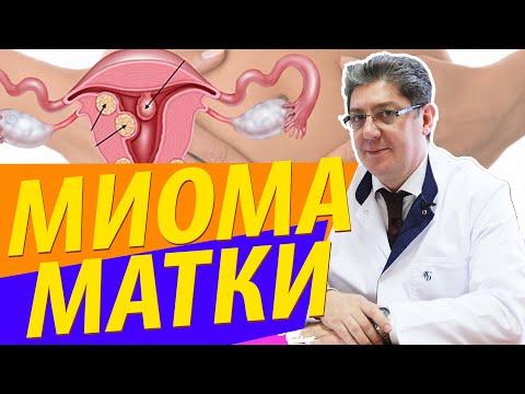 Миома матки: причины, симптомы, лечение