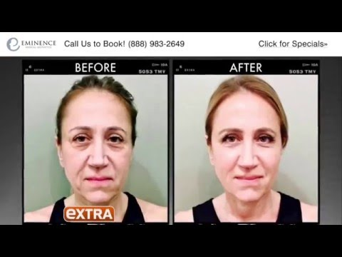 Ultherapy in Princeton NJ: Treatment Demo Real Patient Before and After
