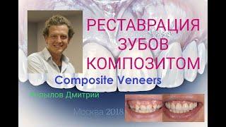 Композитные виниры.  Трансформация клыков в резцы. Виниры до и после. Composite veneers.