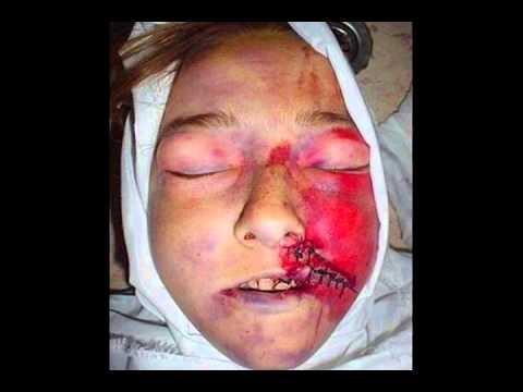 Rachel Corrie (Jangan Pernah Lupakan Ia)