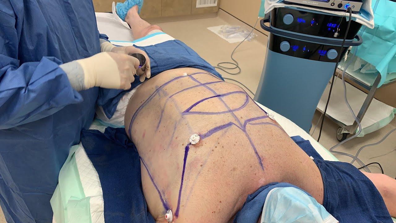LIVE Gynecomastia Surgery - Hidef LipoSculpture