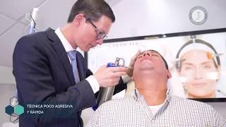 Crioterapia, retiro de verrugas con la aplicación de nitrógeno