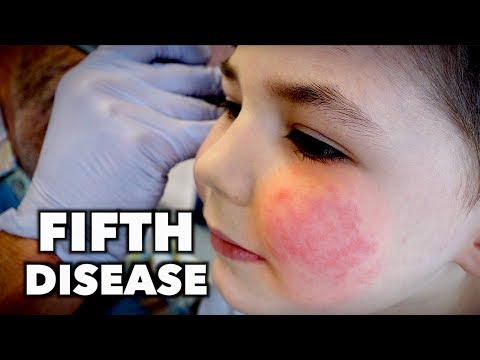 FIFTH DISEASE (Extremely Contagious) | Dr. Paul