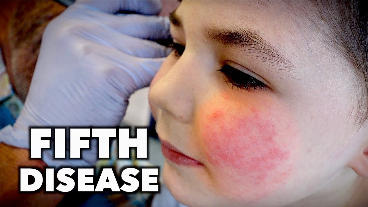 FIFTH DISEASE (Extremely Contagious) | Dr. Paul - YouTube