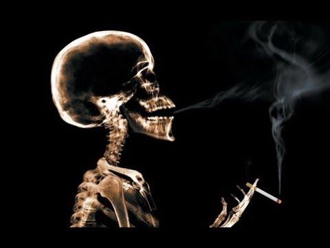 全家脱口笑 戒烟为活命 戒起来要人命 131126