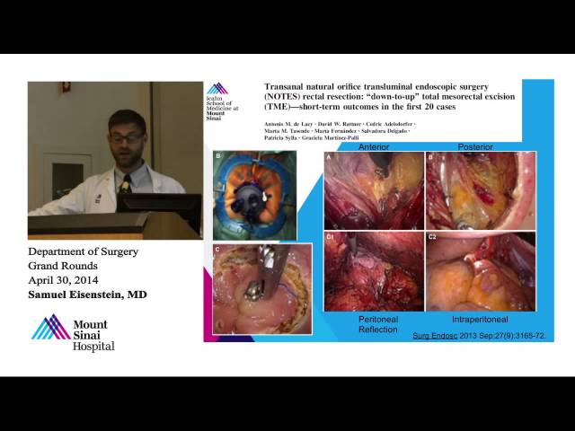 From TEMS to MANOS: New Frontiers of Minimally Invasive Rectal Surgery