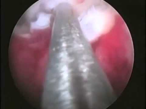 5cm fibroid youtube