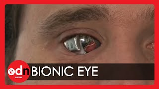 Man sees with 'bionic eye' thumbnail