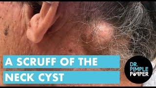 Scruff of the Neck Epidermoid Cyst