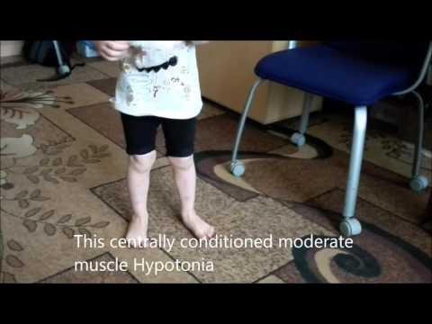Pediatrics Hypotonic Infant By Wendy Stewart M D Doovi