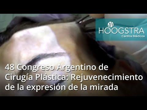48 Congreso Argentino de Cirugía Plástica: Rejuvenecimiento de la expresión de la mirada (18153)