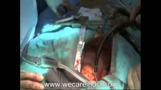 Bypass surgery cost in Mumbai-Get Coronary Artery Bypass Graft Surgery in India