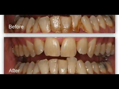 Cara Menghilangkan Karang Gigi Secara Alami Terbukti Ampuh Youtube