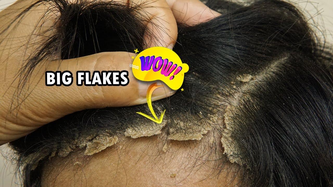 kitörések az arc bőrén vörös foltok formájában viszketéssel