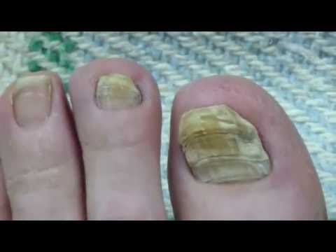 Toe Nail Fungus Cure 30 Months Progress