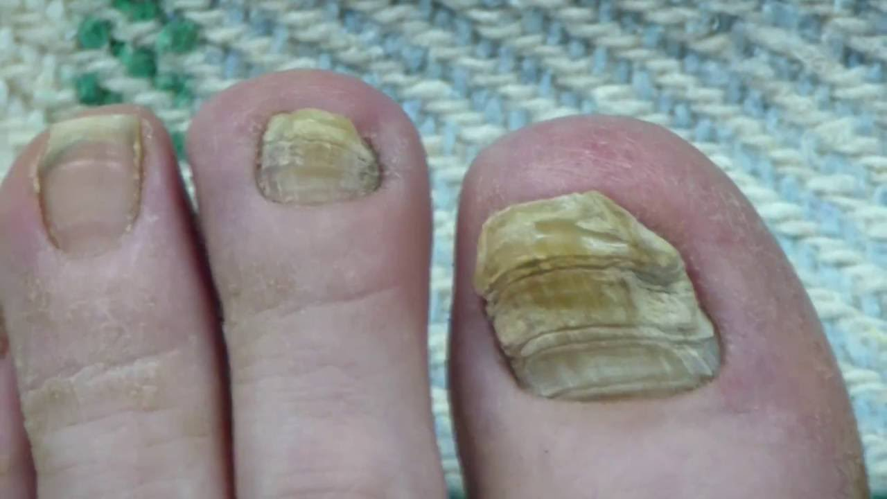Toe Nail Fungus Cure 30 Months Progress - YouTube