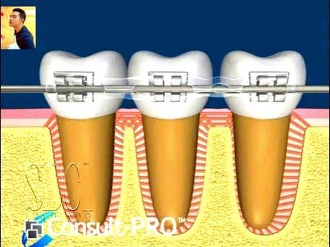ฟันเคลื่อนยังไงตอนจัดฟัน ดัดฟัน