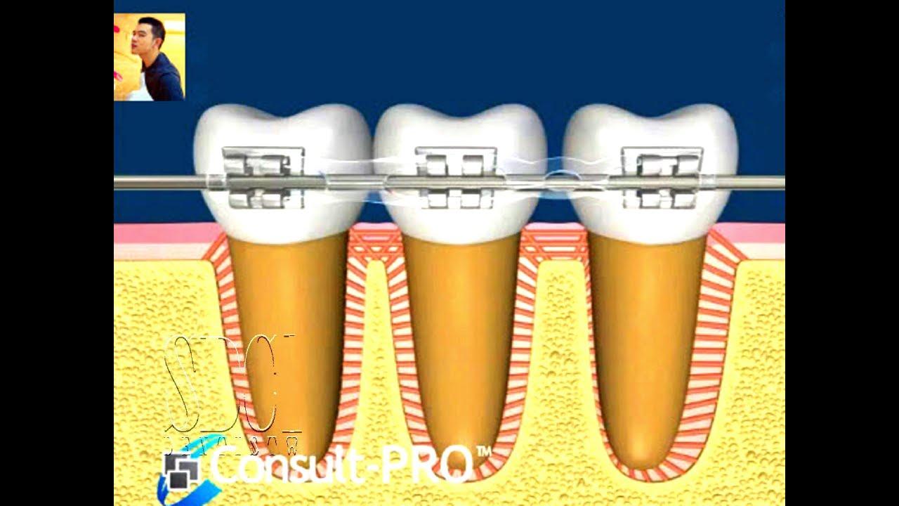 ฟันเคลื่อนยังไงตอนจัดฟัน