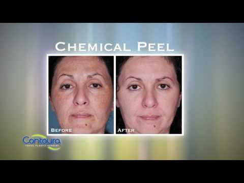 Dr. Roberto Garcia - Contoura Facial Plastic Surgery - Chemical Peel HD1