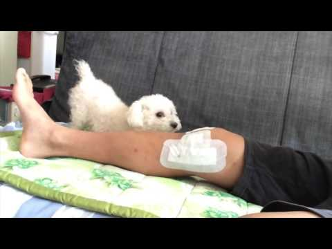 Complete Mcl Tear And Meniscus Tear Months Recovery