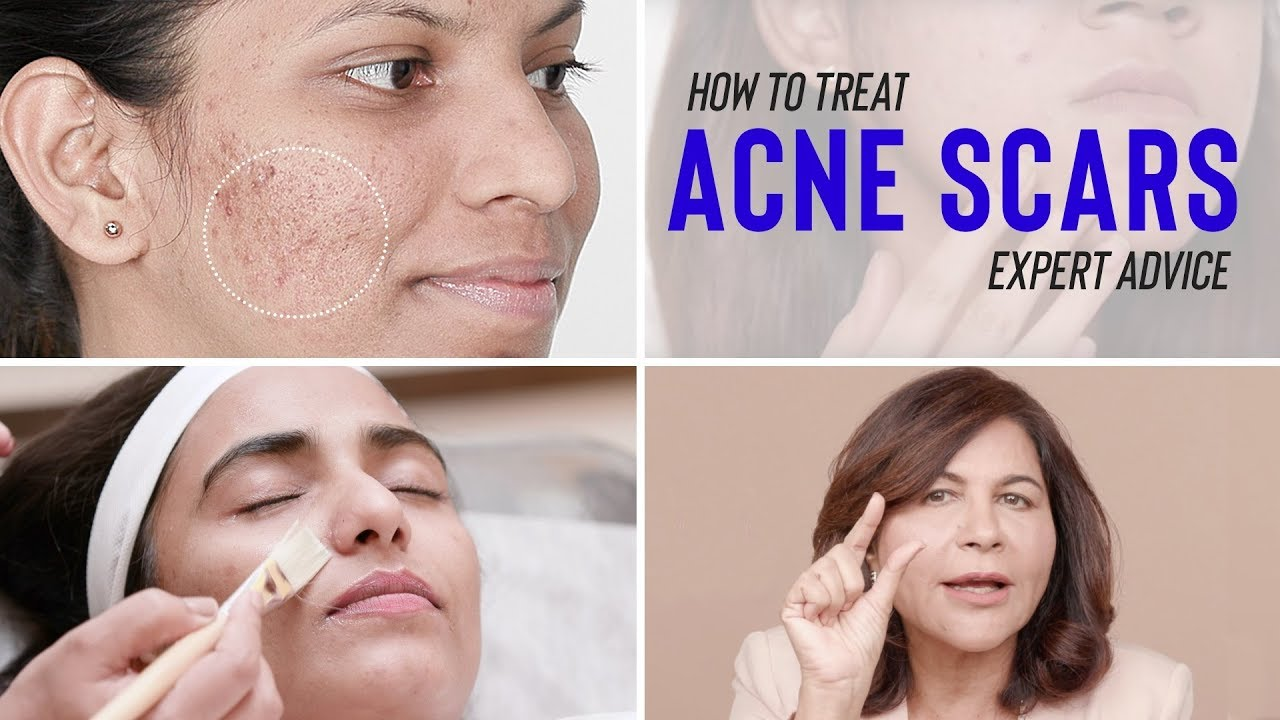 How to get rid of acne scars using baking soda? How to treat your ...