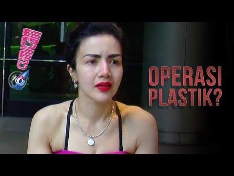 Dituding Lakukan Operasi Plastik, Kumalasari Sodorkan Bukti Ini - Cumicam