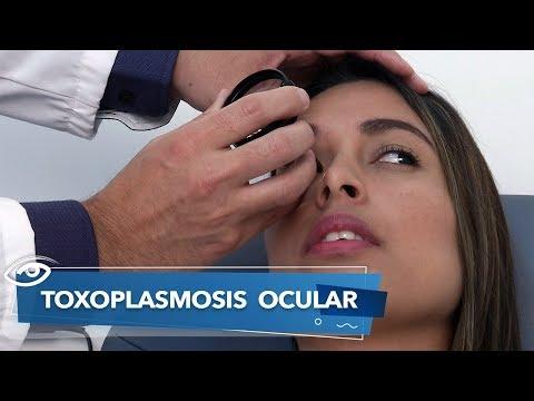 Toxoplasmosis ocular - Día a Día - Teleamazonas