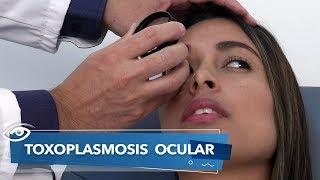 ¿Qué tan rara es la toxoplasmosis en el embarazo?
