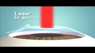 LASIK & LASER Surface Ablation (PRK) (English)