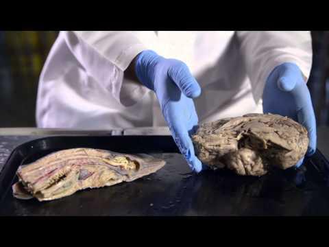 We Are Modified Fish: A History Of Human Evolution — HHMI BioInteractive Video