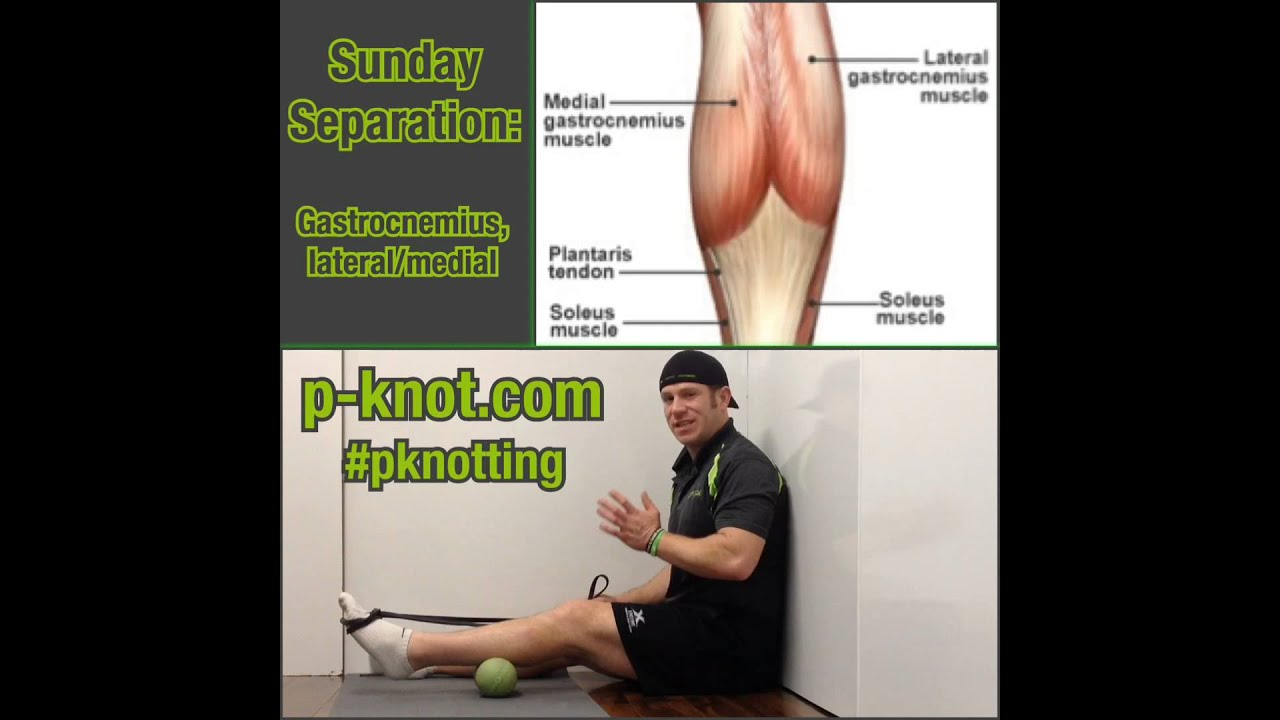 Sundayseparation Separating The Medial And Lateral Head Of The
