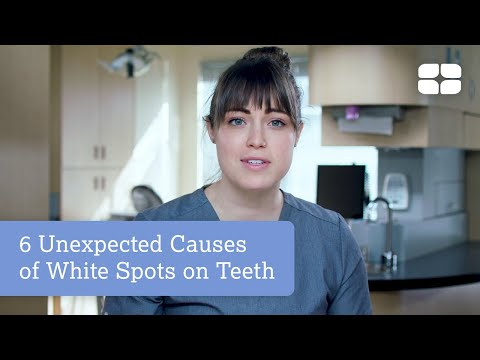 6 Unexpected Causes of White Spots on Teeth | CariFree