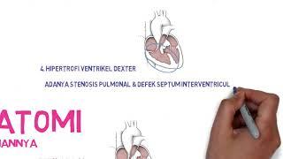 Dampak Anemia Kronis pada Kelainan Jantung [Part 2].