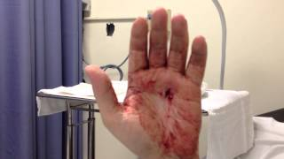Knife wound to the hand