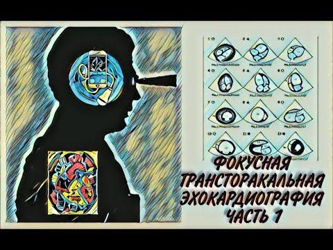 Фокусная трансторакальная эхокардиография