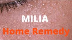 Milia treatment
