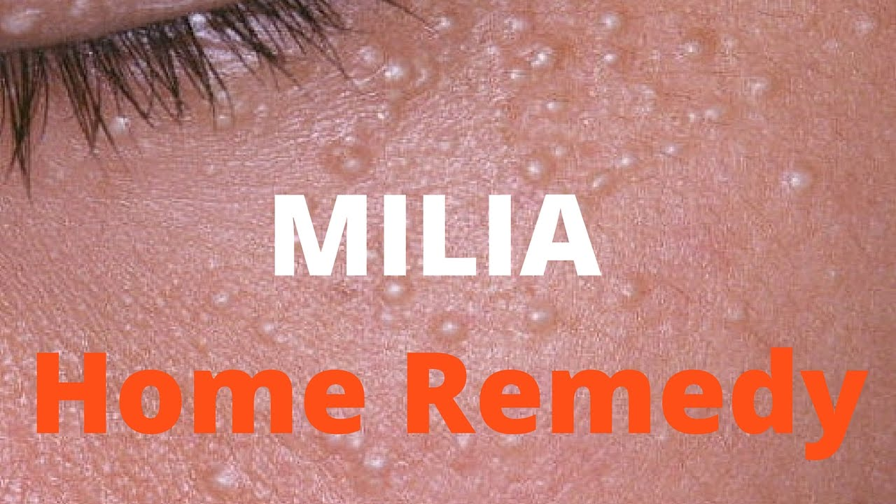 Milia treatment