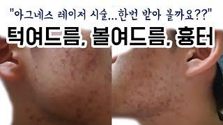 여드름 흉터 피부 때문에 고민입니다. 도와주세요.