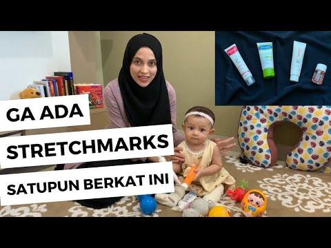 Mencegah Stretch Mark Pada Ibu Hamil | Inilah Cara Mencegah Stretch Mark Pada Ibu Hamil.