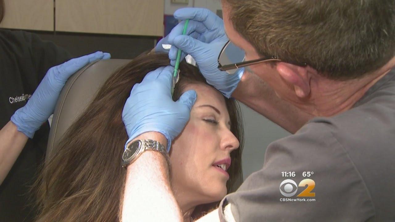 Seen At 11: Scalp Botox Shots
